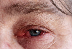 Rheumatoid Arthritis red eye
