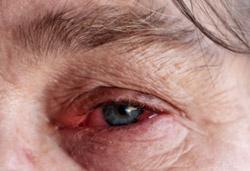 Rheumatoid Arthritis red eye